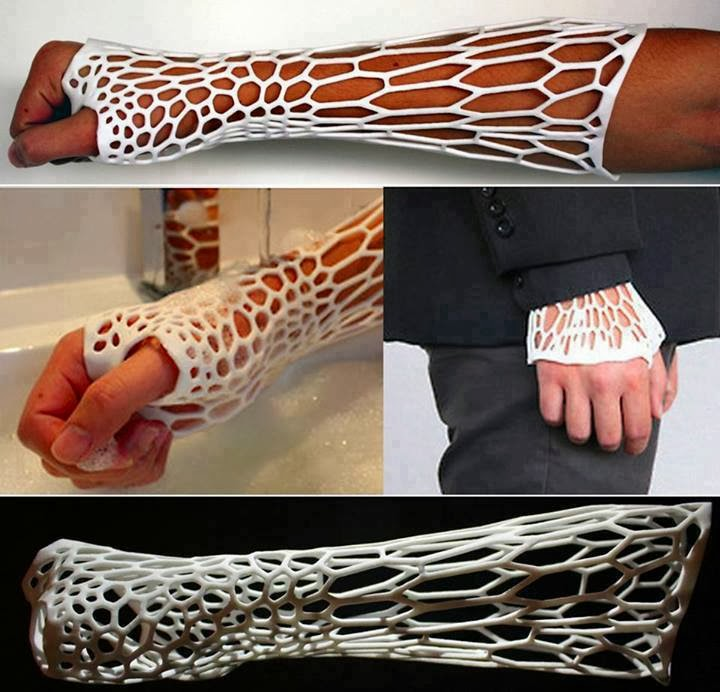 3D Printed Cast For Broken Arms