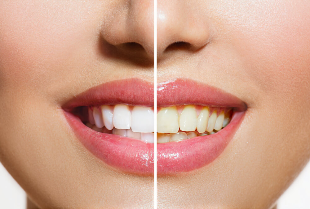 Woman Teeth Before and After oil pulling