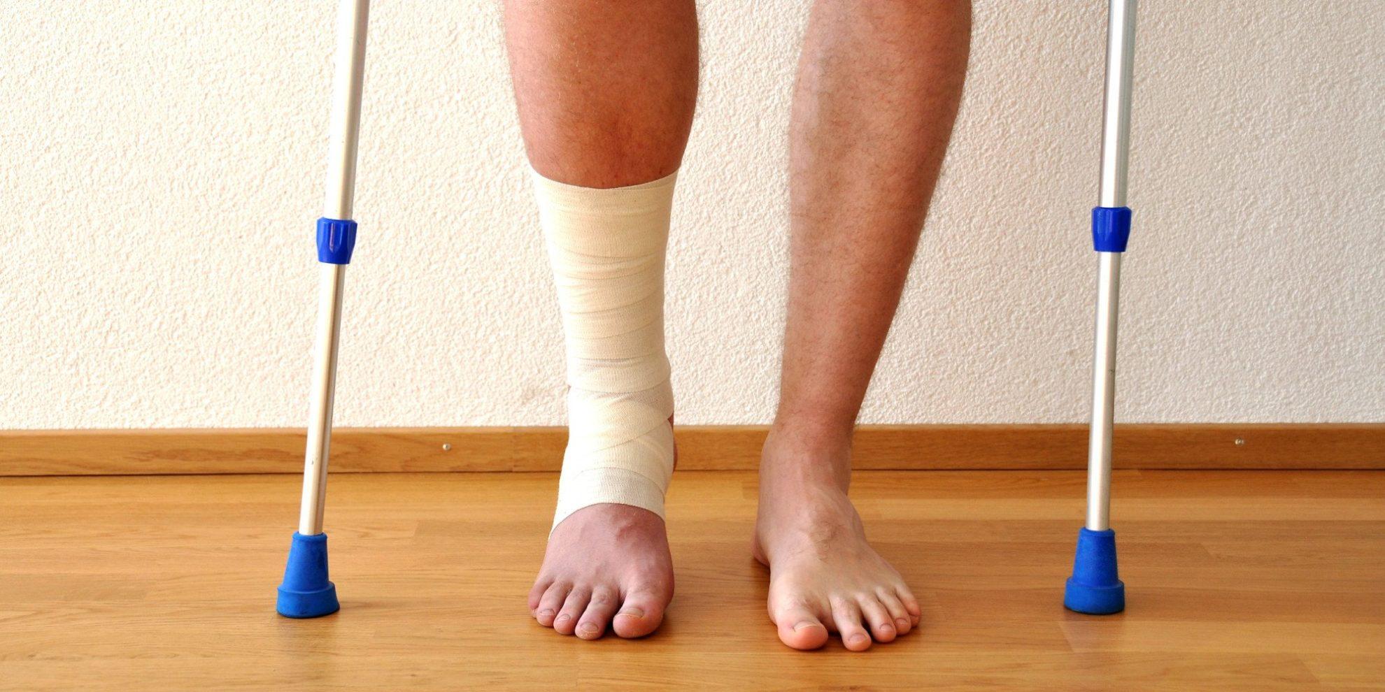 natural remedies for broken bones