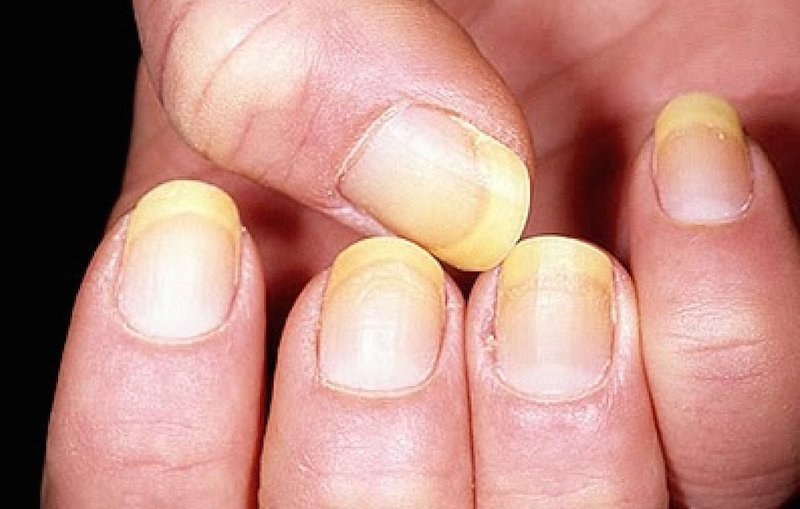 8 Fingernail Health Warnings You Should Never Ignore