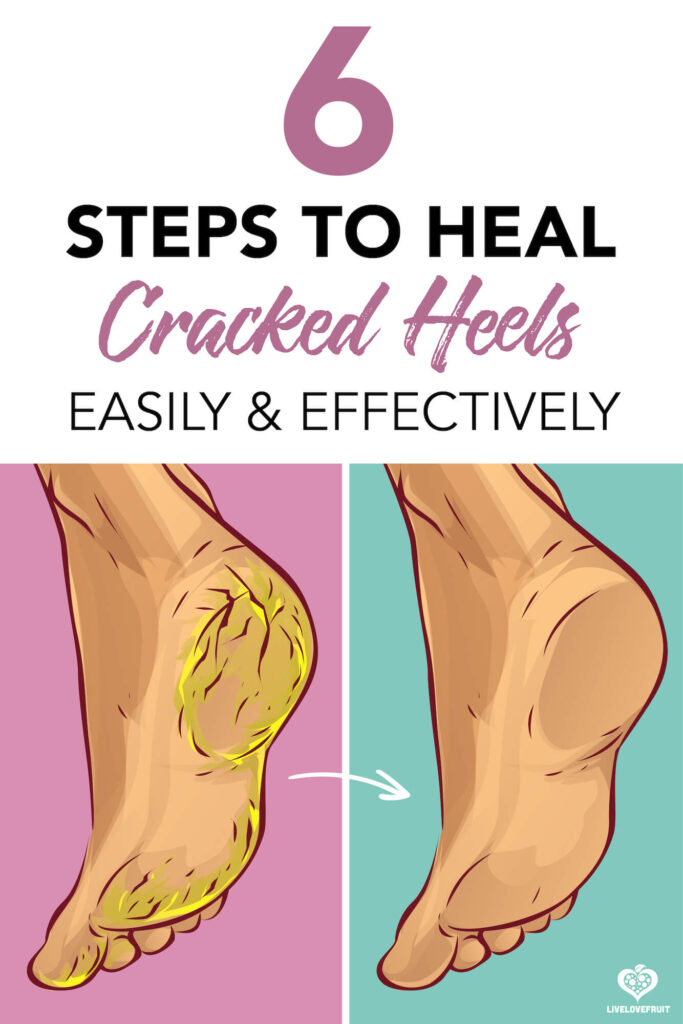 dry cracked heels before and after with text - 6 steps to heal cracked heels easily and effectively