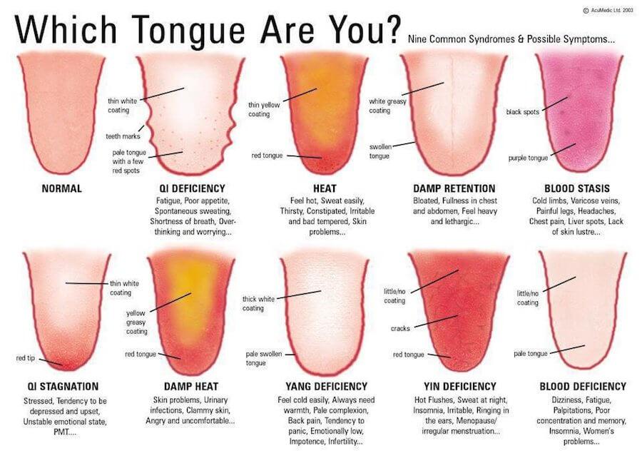 warning-signs-tongue-chinese