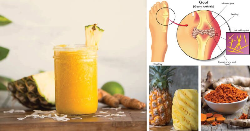 Pineapple_Turmeric_Smoothie_Gout