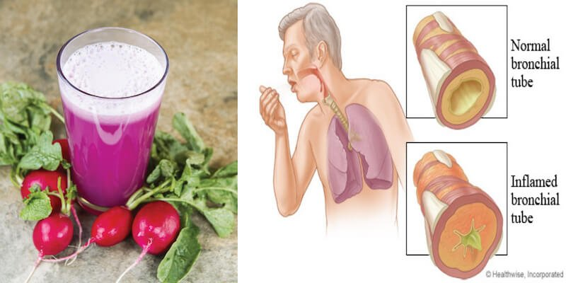 mucus-radish-juice