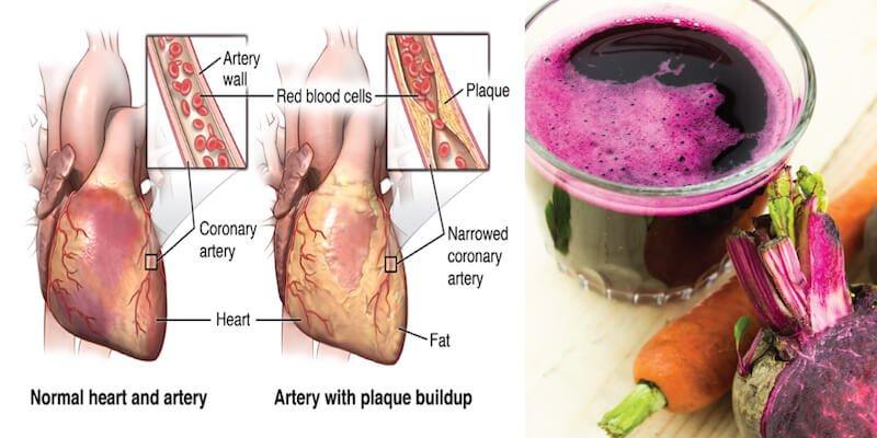 artery-scrubbing-juice