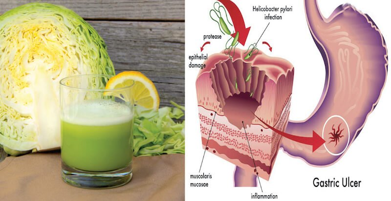 cabbage-juice-ulcer