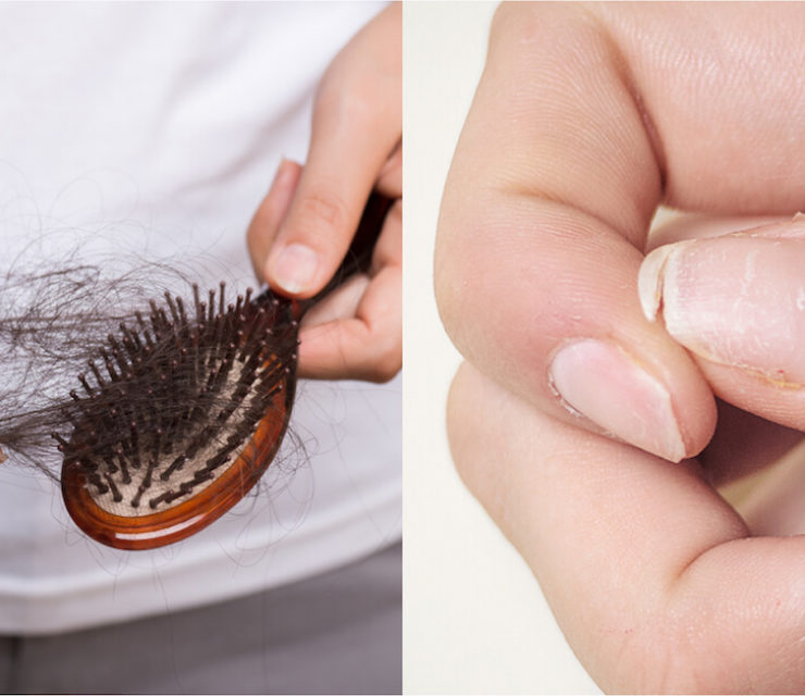 woman taking chunk of hair out of brush next to image of broken nail