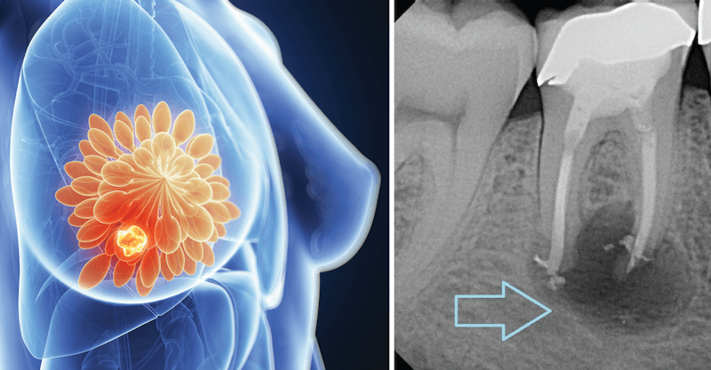 Root Canals Cause Breast Cancer