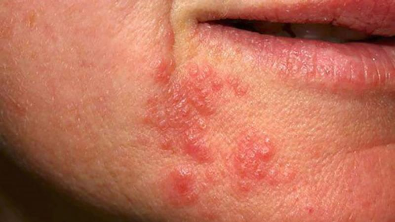 Perioral Dermatitis Child Natural Treatment