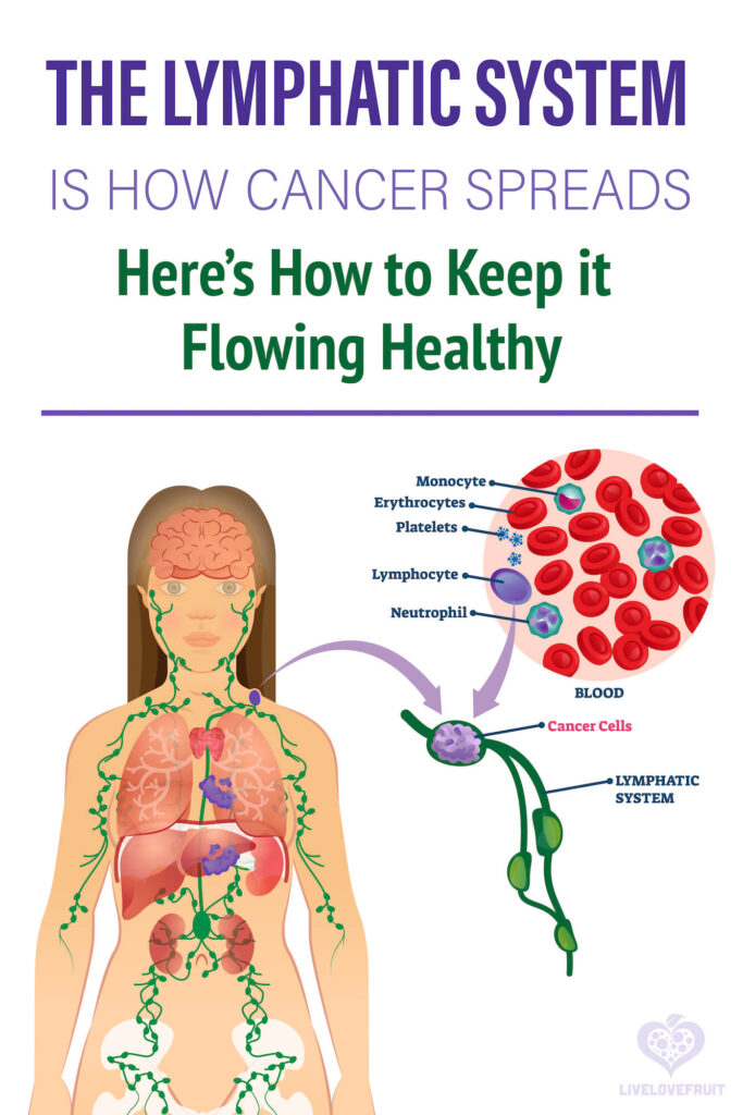 Lymphoma vector illustration with text.- the lymphatic system is how cancer spreads - here's how to keep it flowing healthy