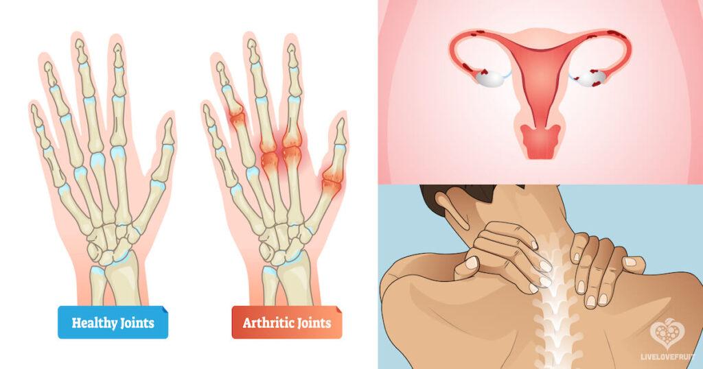 ailments that castor oil can alleviate like arthritis pain, back pain and endometriosis pain