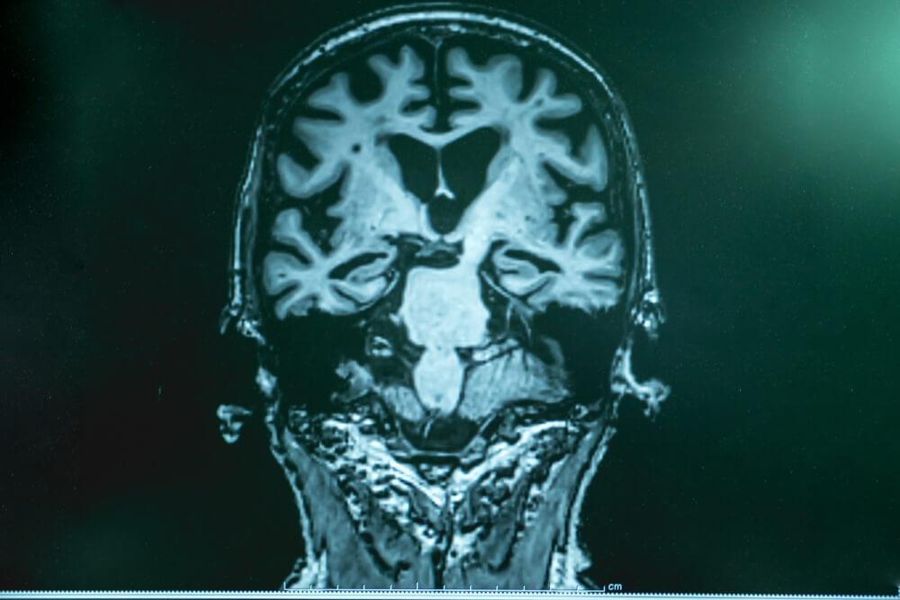 alzheimer's disease with MRI