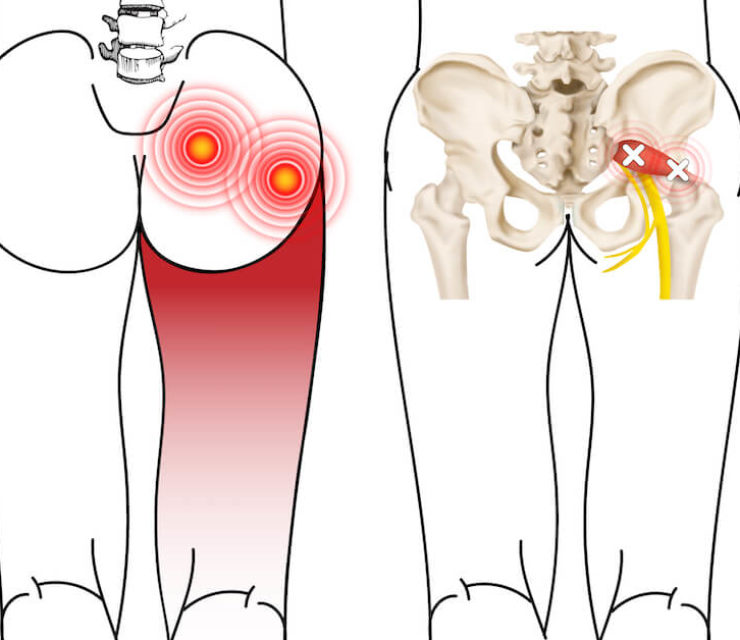 illustrated piriformis muscle showing trigger points and radiating pain