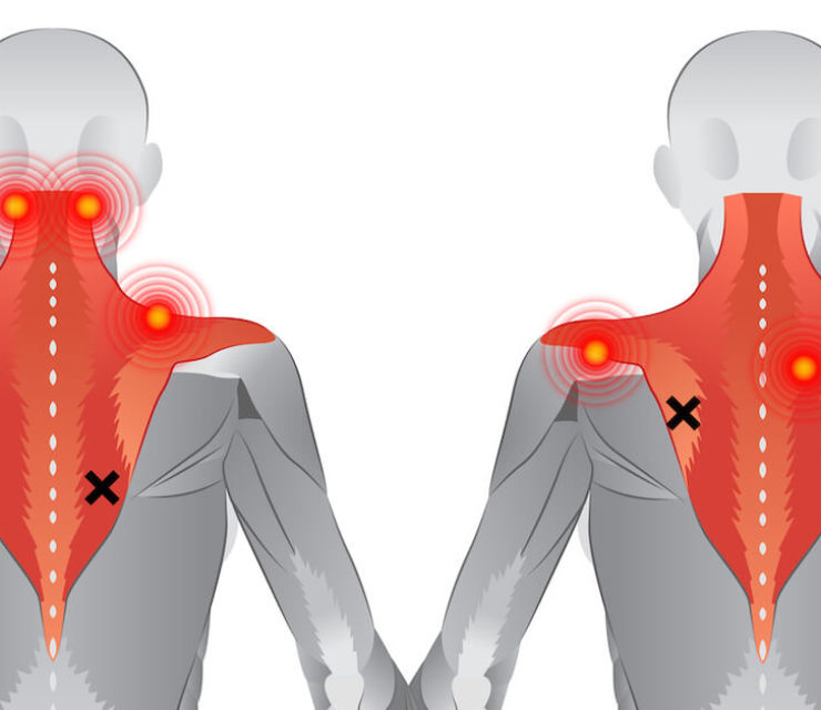 back muscles illustrating common problem areas and trigger point pain referral areas