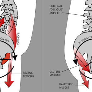 graphic anatomical representation of anterior pelvic tilt