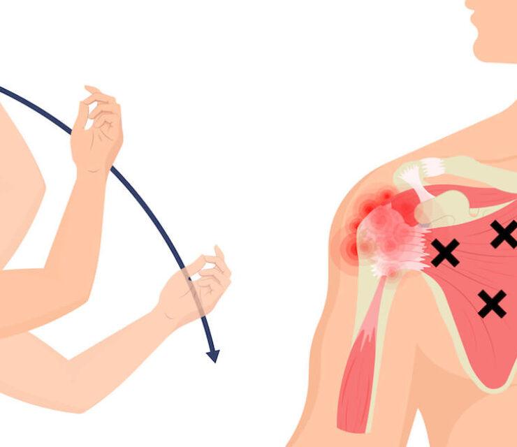 illustration of frozen shoulder