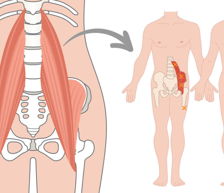 illustration of psoas muscle and trigger points within the psoas muscle