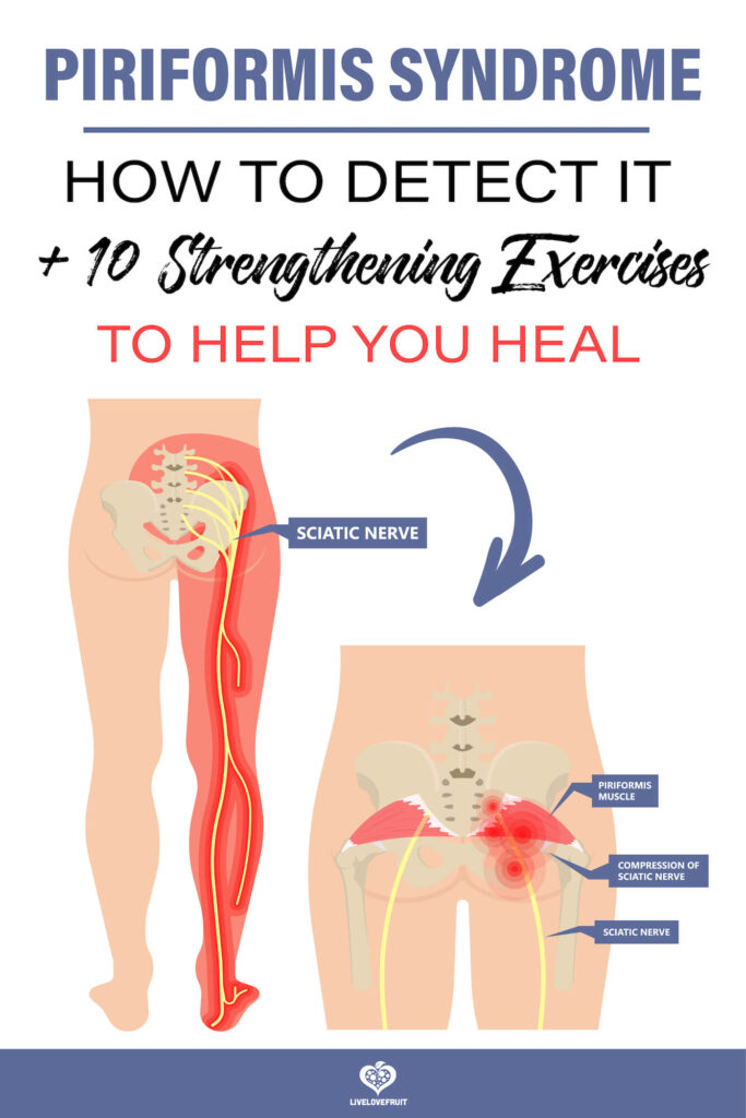Piriformis syndrome pain and numbness in buttocks and down the back of leg with text - piriformis syndrome: how to detect it + 10 strengthening exercises to help you heal