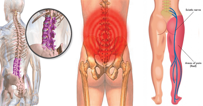 Try These 9 Stretches For Lower Back Pain And Sciatica Pain Relief