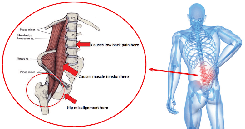 10 Exercises for Back and Hip Pain You Should Be Doing NOW!