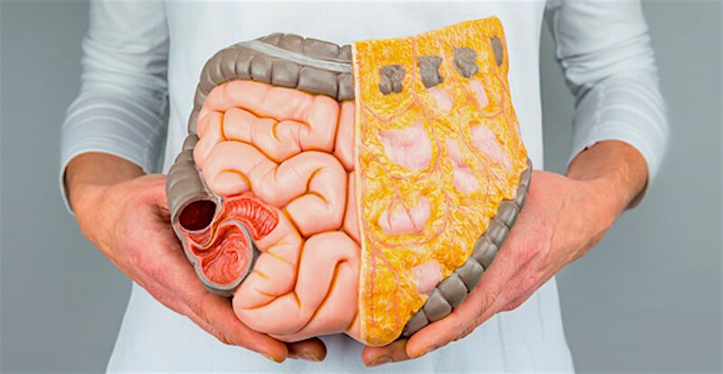A person showing her intestines