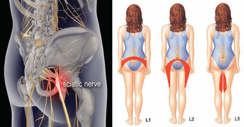 These 7 Easy Yoga Poses Relieve Lower Back Pain Caused By Sciatica