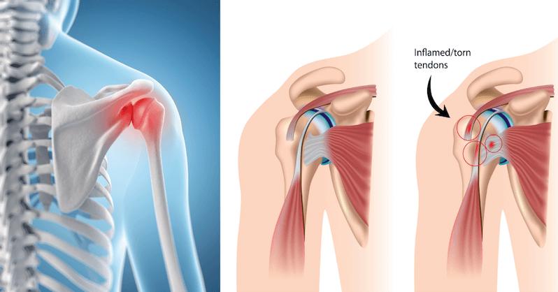 10 Ways To Get Rid of Frozen Shoulder: Unwind Deep Tension and ...