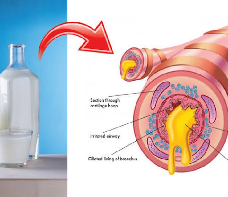 milk in glass bottles next to airway clogged with mucus