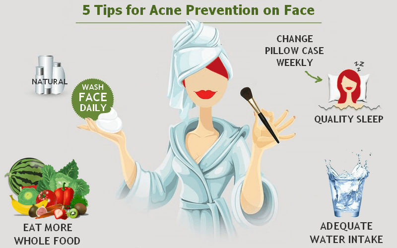 5 acne prevention tips on face