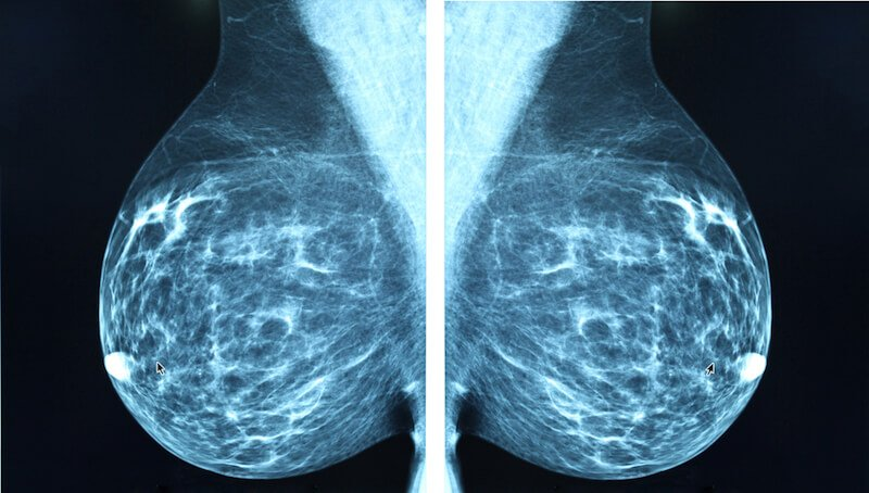 mammogram dangers - Live Love Fruit