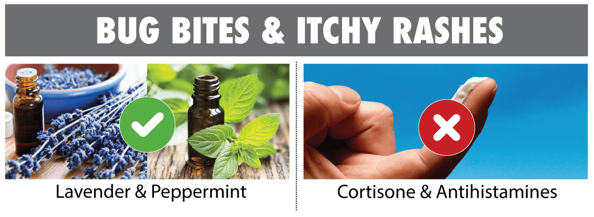 bug bite remedies