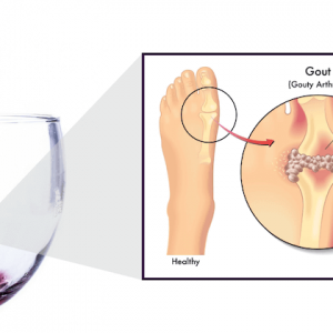 foods that cause gout flare ups